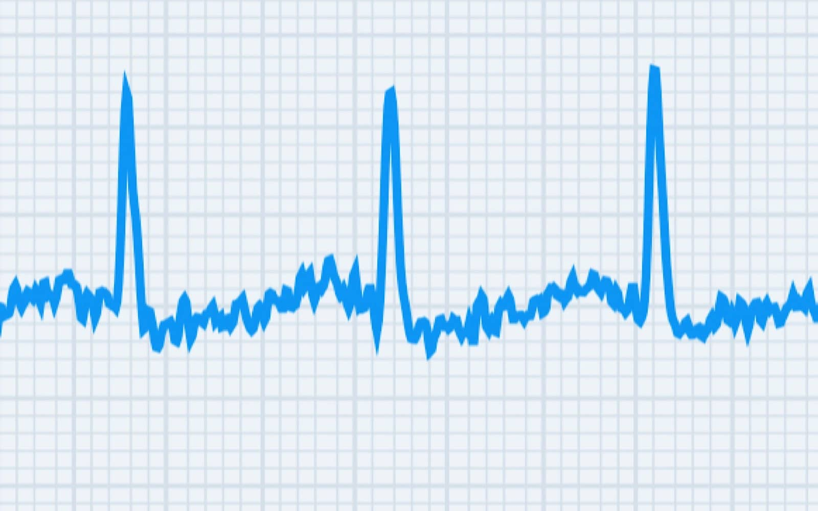 An ECG on the Withings ScanWatch
