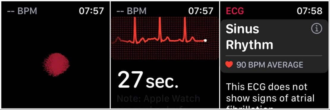 Apple Watch gains support for the ECG in Australia